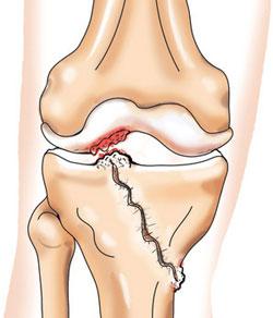 Посттравматический гоноартроз коленных суставов техника артродеза голеностопного сустава