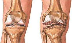 Локтевой сустав и болезнь бехтерева воспаление тазобедренного сустава лечение народными средствами